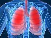COPD - atrial fibrilation