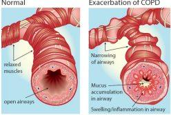 Bệnh phổi tắc nghẽn mạn tính (COPD)
